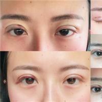 <b>双眼皮全切术后一周必须配戴挡光,求求美者最好绕开手术后</b>