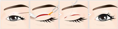 <b>全切双眼皮割毫米较为好双眼皮埋线术后恢复時间较短!</b>
