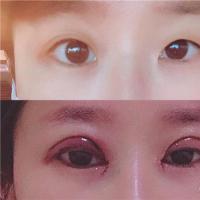 <b>全切双眼皮割了多长时间消炎彻底的双眼皮恢复時间還固定不动</b>