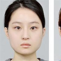 <b>打瘦脸针会让面部松弛吗恰当的使用量与打针的产生与负作用</b>
